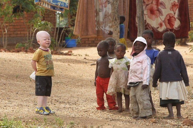 Three-year-old Cassim stands with his friends outside his family home in Malawi, where his relatives have to protect him from hunters targeting Albino people