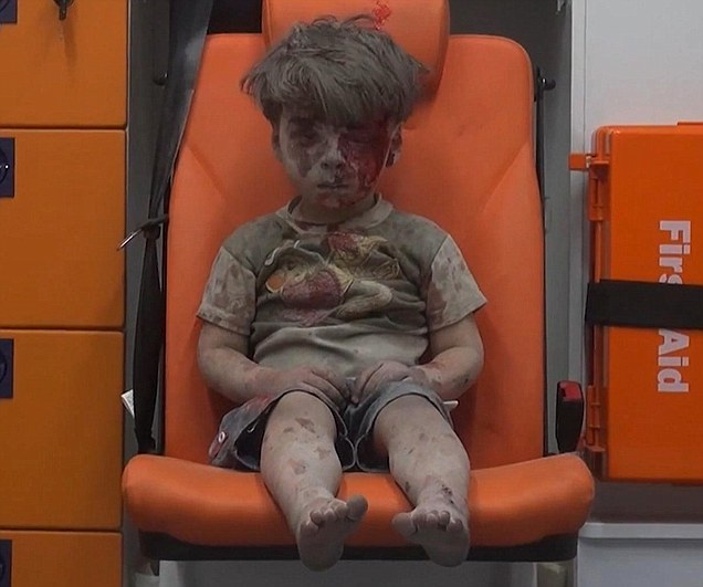 Syrian boy sits wounded in ambulance after a deadly airstrike in Aleppo