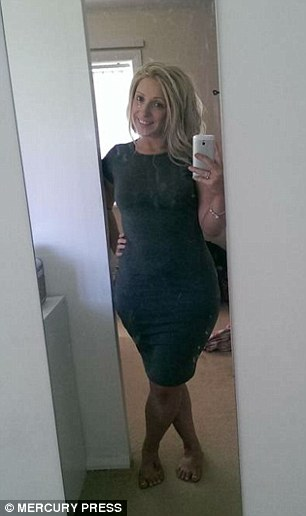 The therapy helped the mother-of-two to lose three stone (pictured after weight loss)