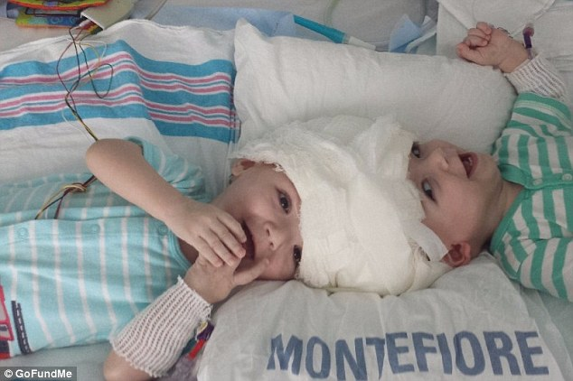 Anias was still in surgery late on Friday morning since he was more affected by the separation of their brain tissue. He eventually came out the operating room at 1pm on Friday