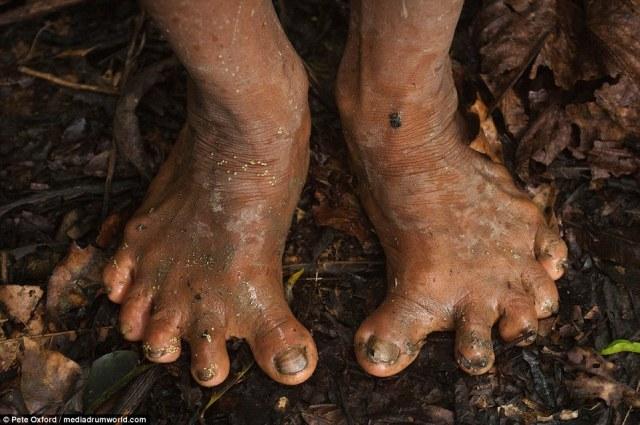 Llamar al podólogo: Los Huaorani pasar tanto tiempo subiendo árboles sus pies han evolucionado y la mayoría tienen los pies muy planos. Debido a la pequeña reserva genética muchos también tienen seis dedos en cada pie