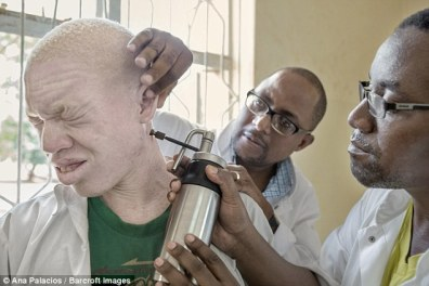 In a major new investigative documentary on BBC2, one British doctor who has Albinism himself, has uncovered the true extent of this barbaric practice and shone a spotlight on this shocking trade in human body parts