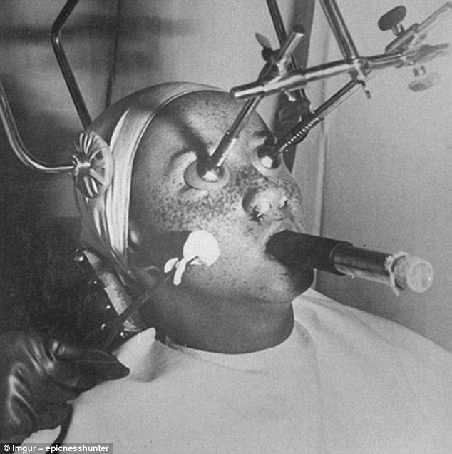 'Freezing' freckles off with carbon dioxide was popular in the 1930s. While it was applied, patients eyes were covered with airtight plugs, their nostrils filled in for protection and they had to breathe through a tube