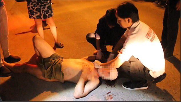 Onlookers covered him with a small towel and found a pair of shorts as rescue workers bandaged his head