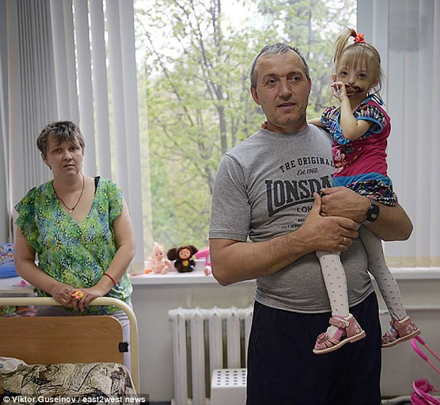 But Elena and Yury, from the Krasnoyarsk region, refuse to hide their daughter away while surgeons attempt to rebuild her face