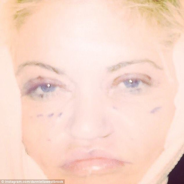 Sore: Danniella Westbrook shared a puffy faced picture of herself just 48 after surgery via Instagram on Saturday. The former Eastenders star, 43, went under the knife once again