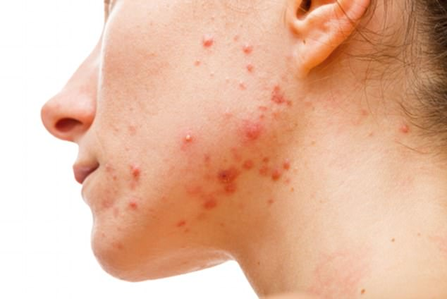 Dry skin, blemishes and acne are unfortunate signs that your gut is turning toxic, as is a poor immune system (stock image)