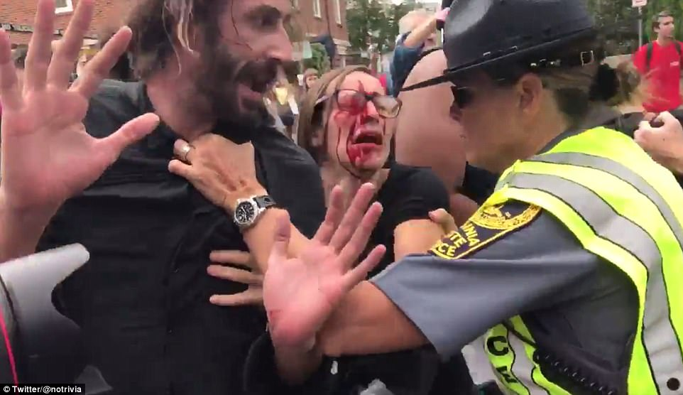 At least 15 people were seriously injured earlier during the day during clashes between white nationalists and counter-protesters at Emancipation Park before the controversial Unite the Right rally on Saturday. A video appears to show the altercation, as a man is being dragged away while a woman screams: 'Don't allow them to do this!'