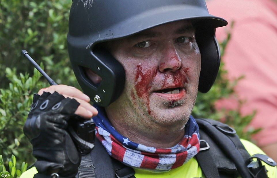 A white nationalist demonstrator, bloodied after a clash with a counter demonstrator, talks on the radio receiver