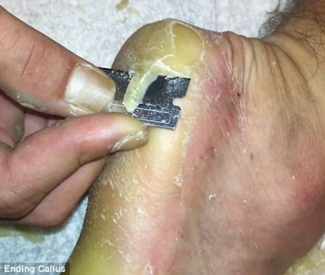 The  Minute Clip Shows The Man Slicing Away Through The Callus On His Foot