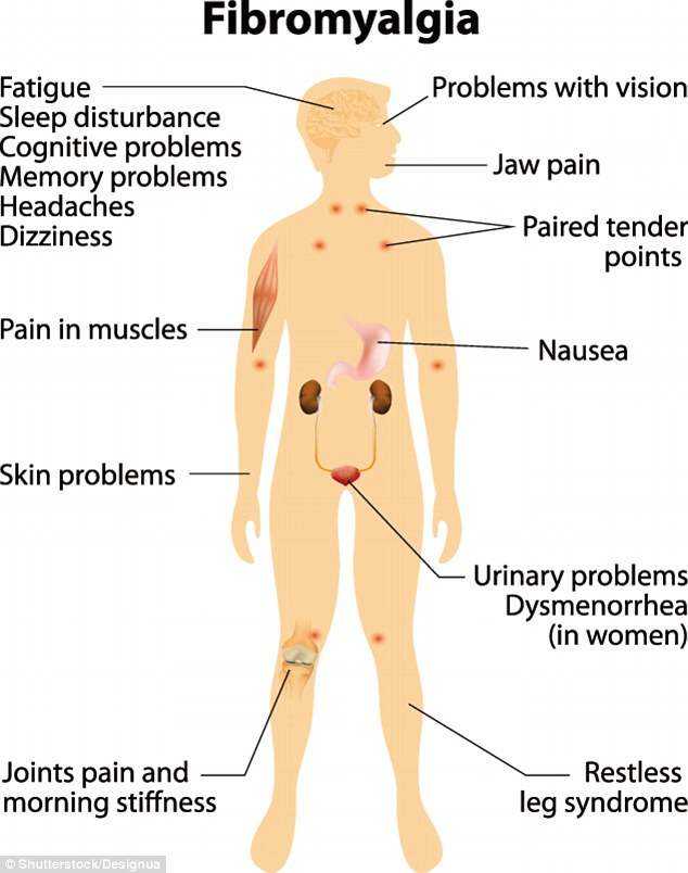 This graphic shows what people can experience if they have fibromyalgia and where these symptoms form in the body. Symptoms include joint and muscle pain, an inability to fall or stay asleep and memory problems