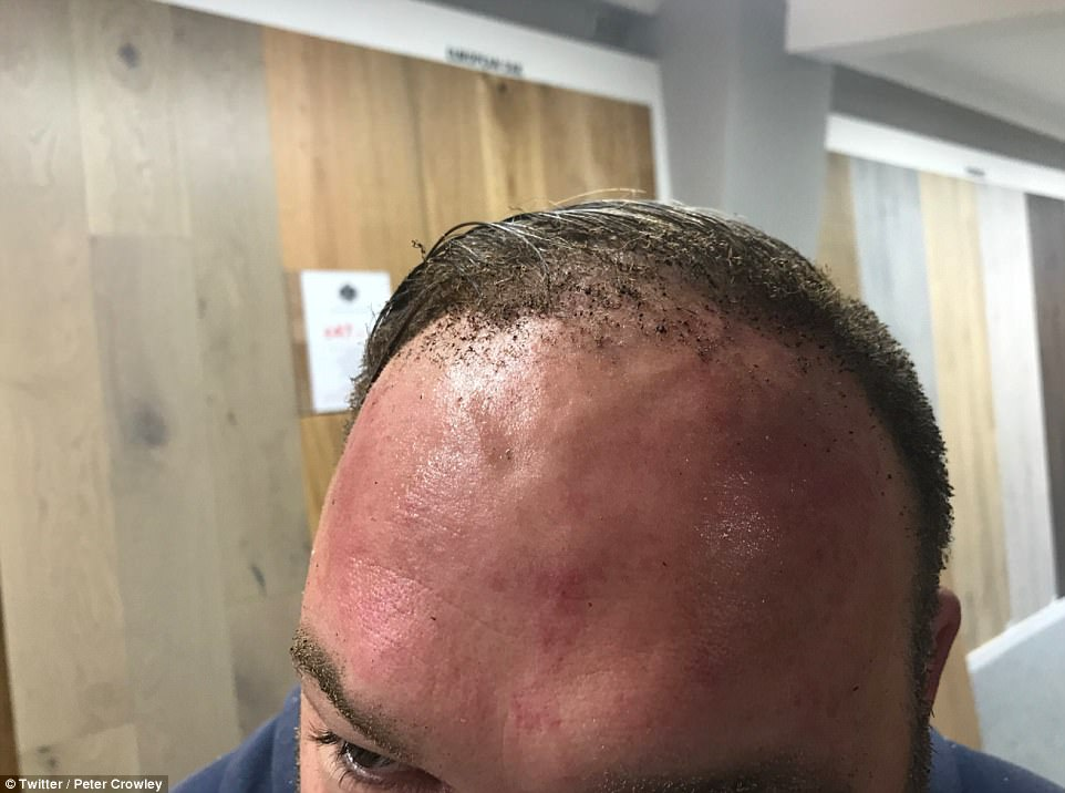 Peter Crowley, who was travelling on the District Line this morning, said his head has been 'charred' after a fireball engulfed his train