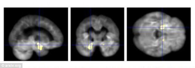 These sans showreduced grey matter density in patients with Alzheimer¿s disease, a neurodegenerative disease - which leads to loss of memory and cognitive function.