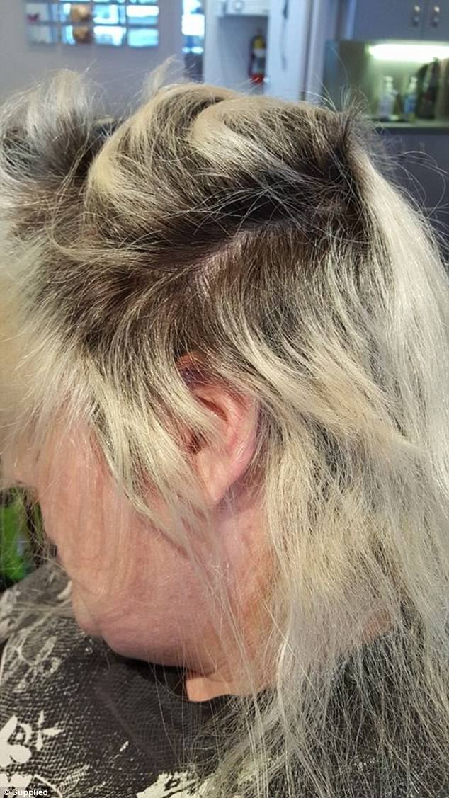 One Womans Botched Bleach Job Left Her With A Burnt Scalp