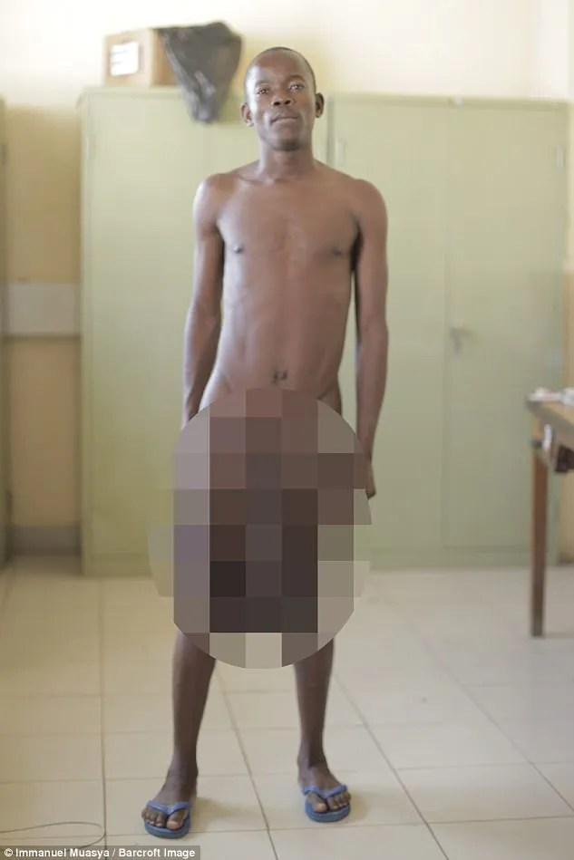 Horace Owiti Opiyo's 11lb testicles and three-foot penis left him barely able to walk