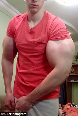 Bizzare photos: Russian man flexes his 24inch biceps after injecting his muscles with dangerous chemicals
