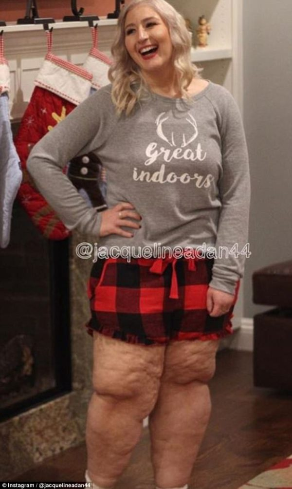 Woman reveals details of leg loose skin removal surgery ...