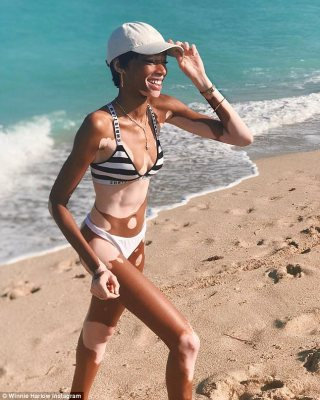 Wow thing: Model Winnie Harlow showed off her impressive physique in a striped Dior bikini as she enjoyed a stroll on a Miami beach