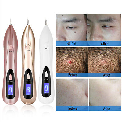 Profi Spot Tattoo Freckle Granulation Mole Dot Warzen Entfernung Stift Maschine