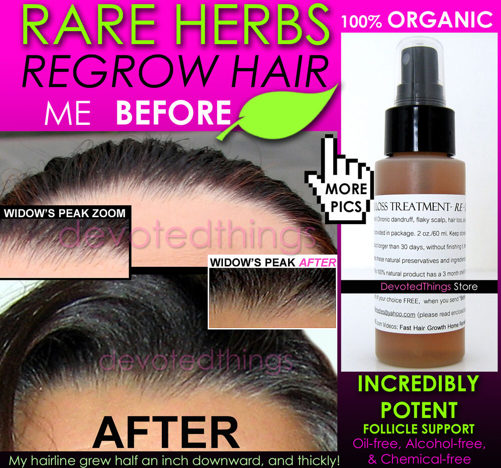 ORGANIC HAIR REGROWTH TREATMENT MEN Amp WOMEN HAIR LOSS