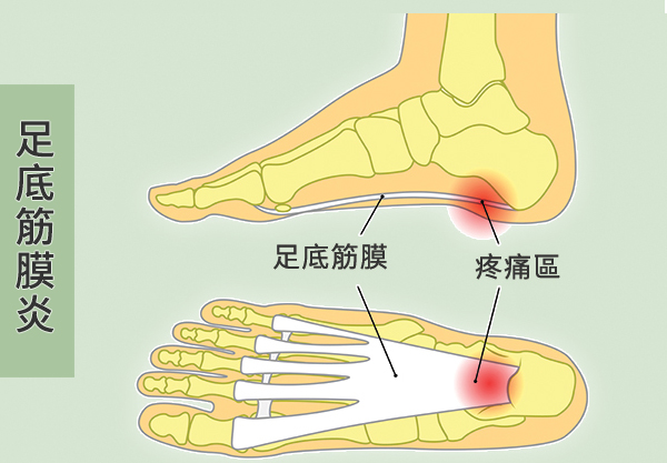 腳跟痛是「足底筋膜炎」?7個動作改善 @ Moodsky :: 痞客邦