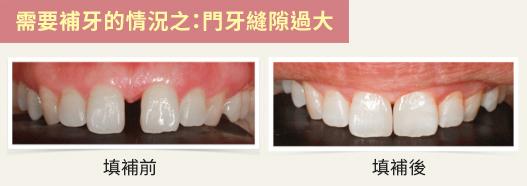 有時為了美觀可能需要補牙。(蔡忠廷醫師提供/大紀元製圖)