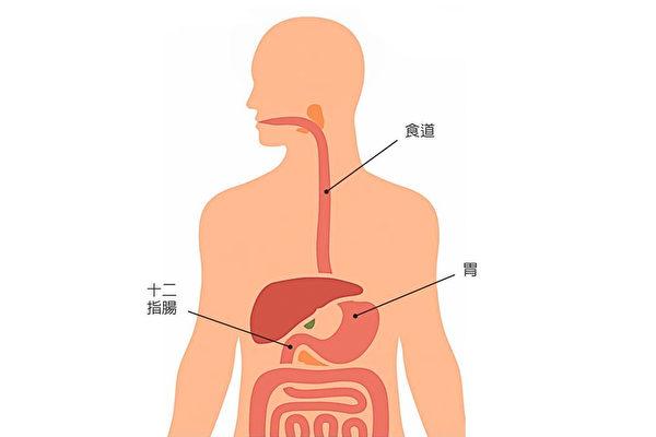 上消化道出血怎麼辦?3味藥膳保養 | 治療 | 止血 | 胃潰瘍 | 大紀元