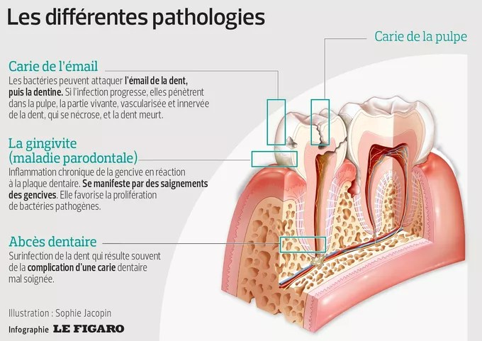 Caries, gingivitis, abscesses     What to do with oral