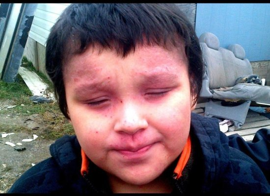 Boy from the Attawapiskat Reserve