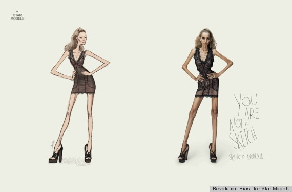 anorexia ads