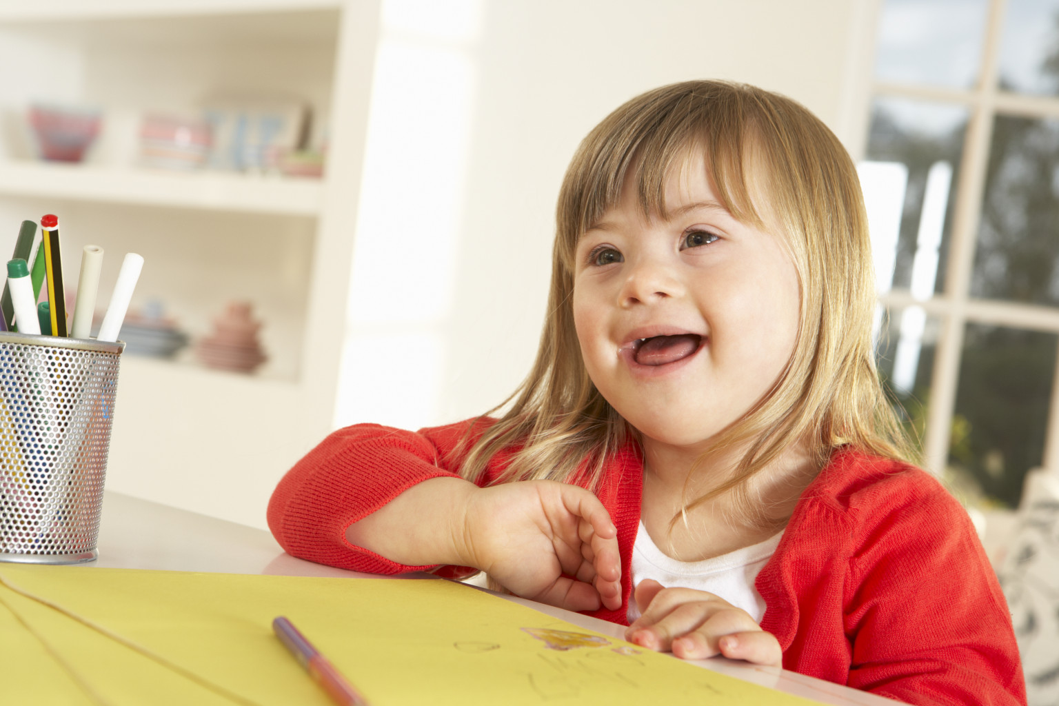 Down S Syndrome Could Be Switched Off Say Scientists