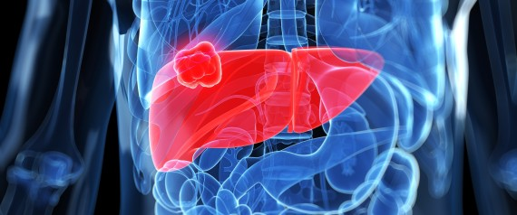 diabetes liver cancer