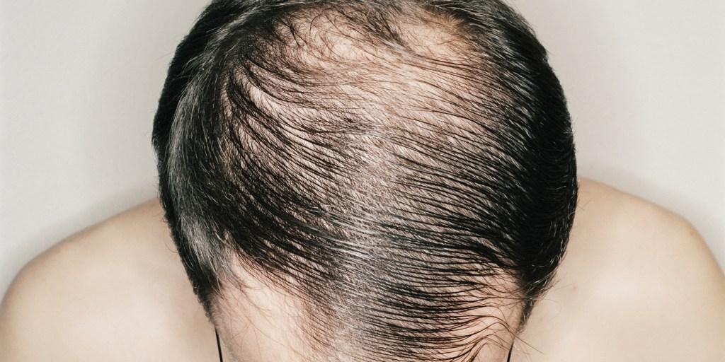Male Baldness When Do Men Go Bald
