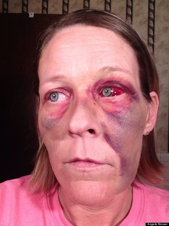 Woman Posts Domestic Violence Selfies To Facebook (GRAPHIC ...