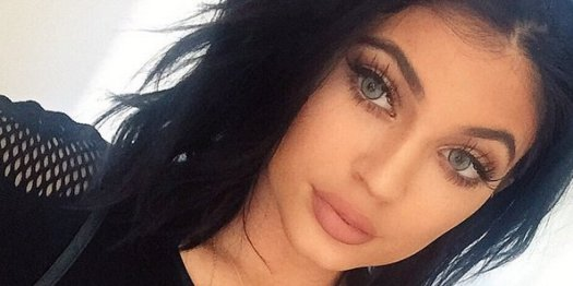 Kylie Jenner FINALLY Admits To Temporary Lip Fillers In ...