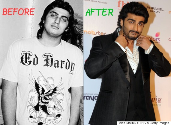 Image result for before and after pictures of Indian celebrities