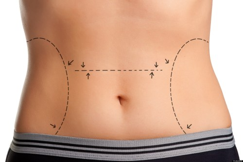 Cosmetic Surgeries: Top of the Charts and on the Horizon 1