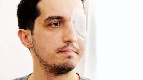Ministry to pay over 1 million liras to man injured during Gezi