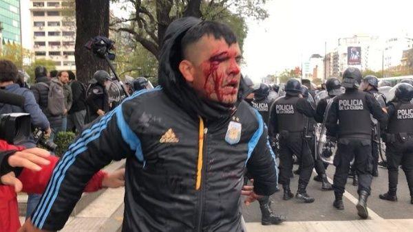 Brutal represión contra las protestas contra el hambre en Argentina