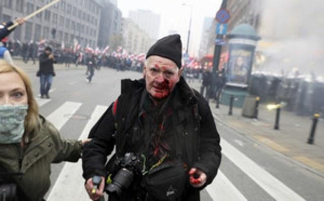 Marsz Niepodległości. Postrzelony fotoreporter: Jak przyjdą policjanci, to ich wyrzucę