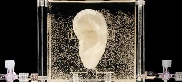 Artist regrows Van Gogh's ear using his DNA