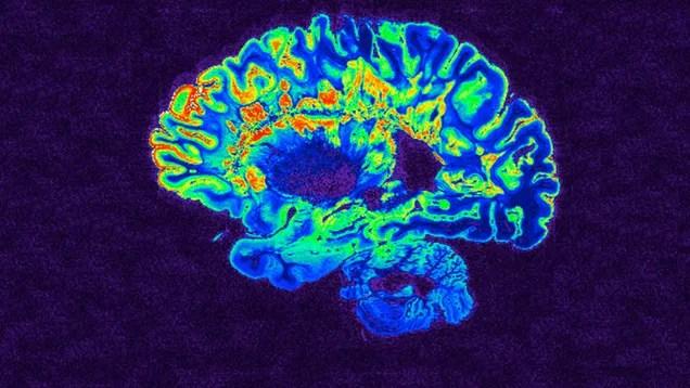 otfaghzdoxzoemrwp83p Anesthetized Monkeys Wake Up Instantly When Researchers Stimulate Brain Region Linked to Consciousness | Gizmodo