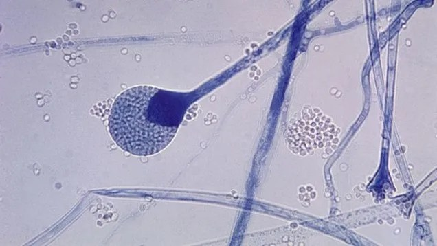 Oh Crap, Fungus Can Grow In Your Brain