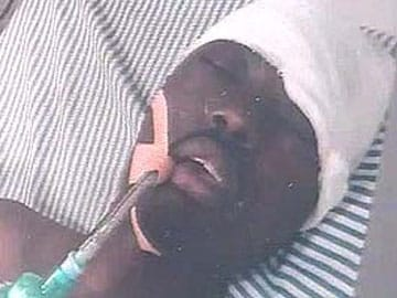 Burundi Student Yannick Nihangaza, Who Was Brutally Attacked in Punjab, to be Sent Home