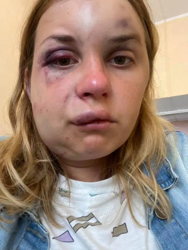 Анастасія Лугова розповіла про жорстокий напад у поїзді