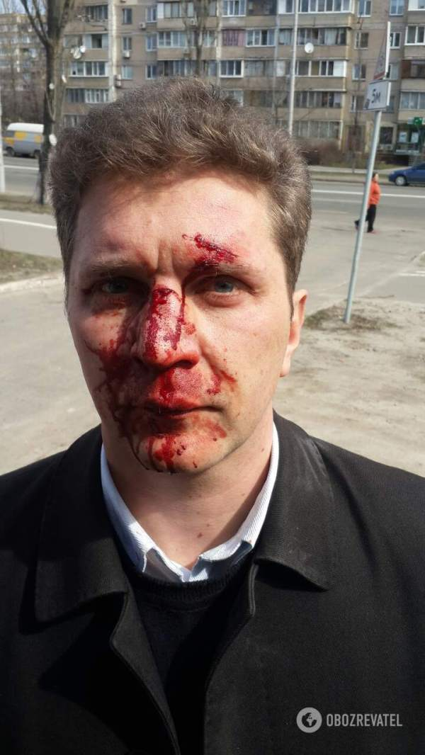 Дубль два: в Києві по-звірячому побили лікаря, який ...