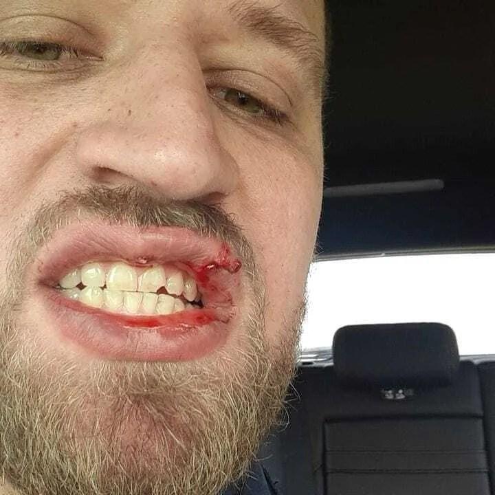 Николая Ворошнова избили в Киеве