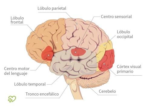 El SN, el cerebro y los accidentes cerebrovasculares - El Baúl de la ...