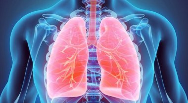 Tüdőrák IV. stádium, áttét a mellhártyán, mellékvesén