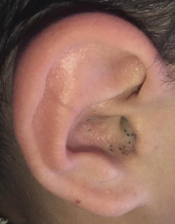 both my brother's ears are filled with blackheads, but he ...